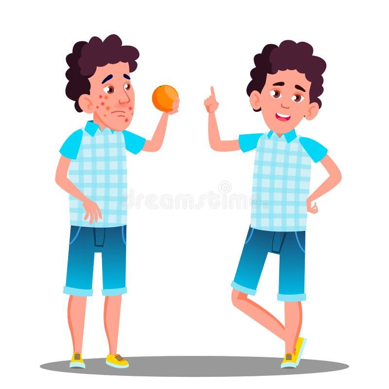 Reazione allergica, ragazzo triste con i punti rossi che tengono un vettore arancio Illustrazione isolata del fumetto royalty illustrazione gratis