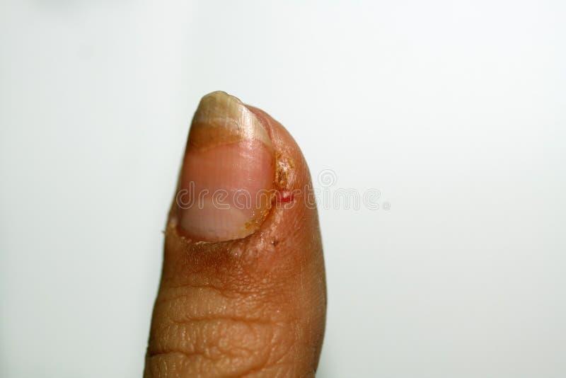 Rebarbas no dedo Inflamação e abcesso fotos de stock