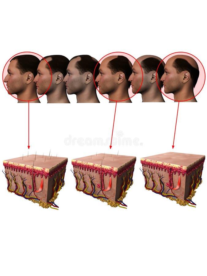 Free Receding Hairline Balding Losing Hair Stock Image - 22381521
