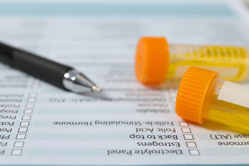 Recipientes com as amostras de urina para a análise no relatório médico, close up foto de stock