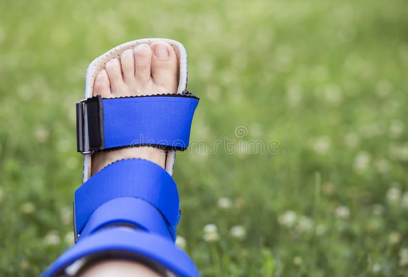 Recovering of ankle with support brace. Foot ankle recovery concept, stabilizing with a support brace, leg fixer stock photography