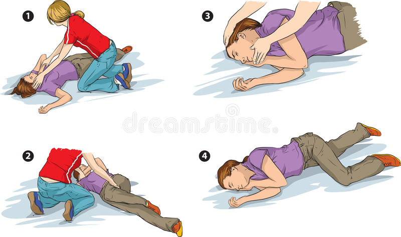 Recovery position. Vector illustration of recovery position of vicitm's body (first aid) vector illustration