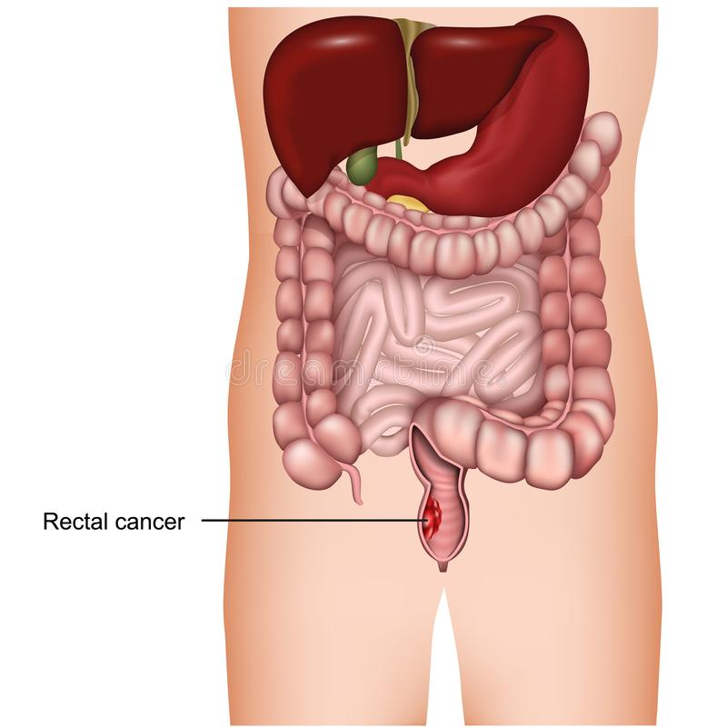 Rectale kanker medische 3d illustratie op witte achtergrond, colorectal kanker vector illustratie