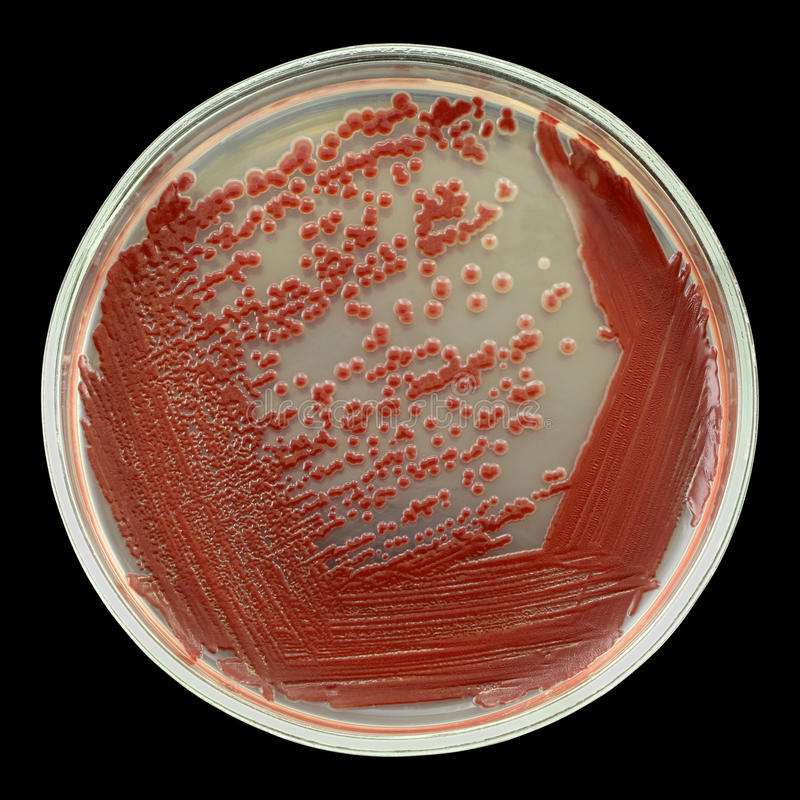 Red bacterial colonies on a petri dish isolated on black stock image