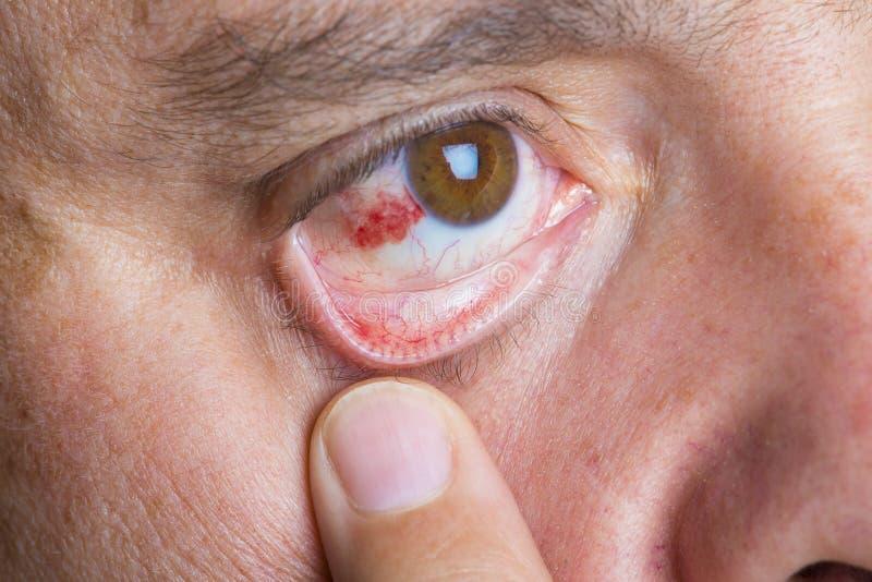 Red bloddshot eyes stock photo