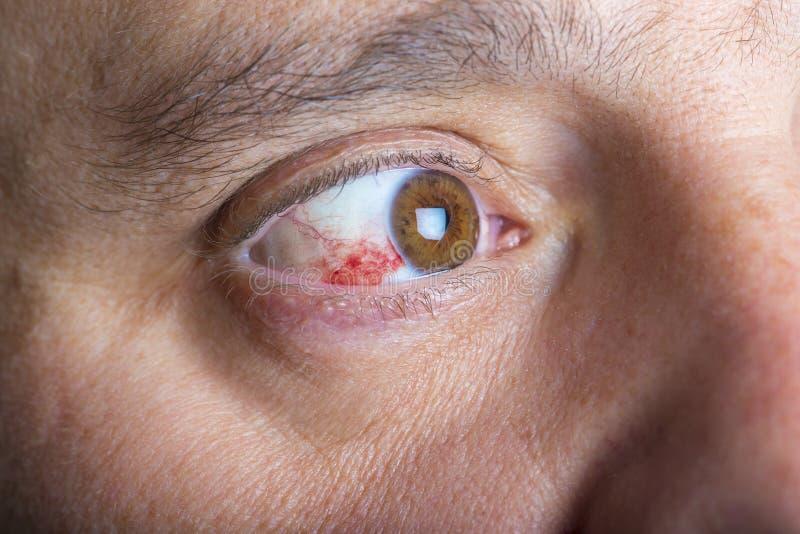 Red bloddshot eyes stock image