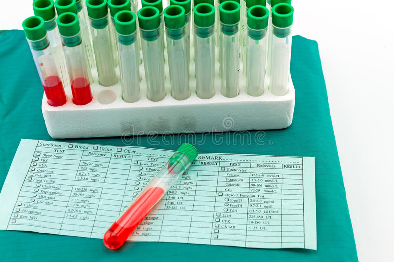 Red blood in test tube on blue blank with results in column in front of blood test form and blue medical uniform. Red blood in test tube on blue blank with royalty free stock photography