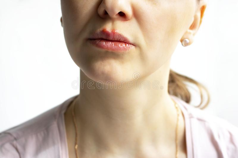 Red bubbles of virus herpes on lips of a woman in light pink t-shirt, lower part face is seen. Medicine, treatment stock image