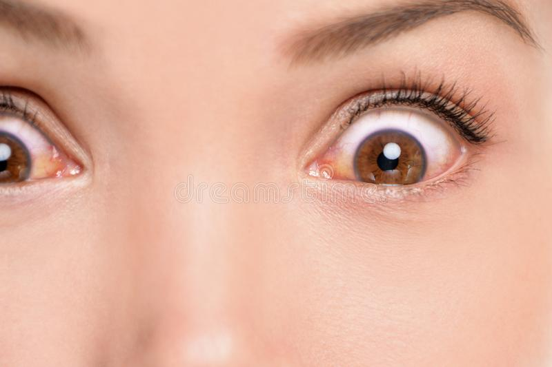 Red eyes woman with allergic reaction conjunctivitis irritated bloodshot eye inflammation. Closeup of shocked upset person with. Medical problem infection royalty free stock photography