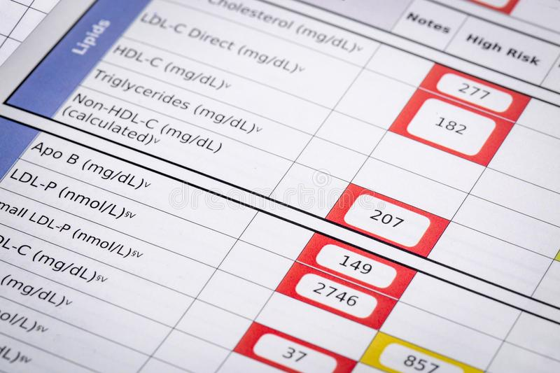 High risk cholesterol test results stock image