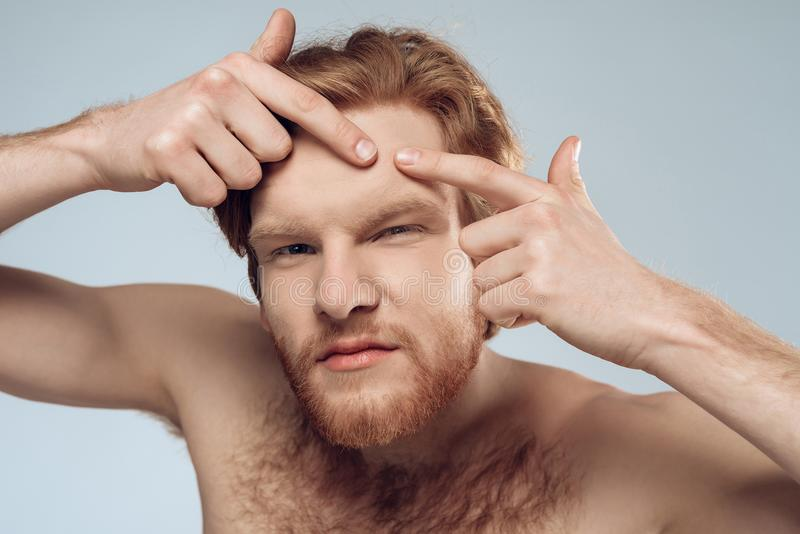Red haired young man squeeze out pimple stock images