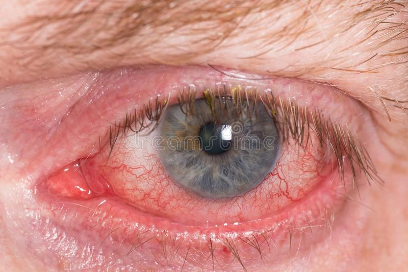 Red irritated eye. Almost open red and irritated eye with blood vessels royalty free stock photos