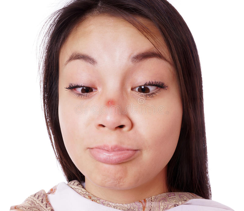 Red pimple on nose. Young asian woman looking cross-eyed at red pimple on her nose royalty free stock images