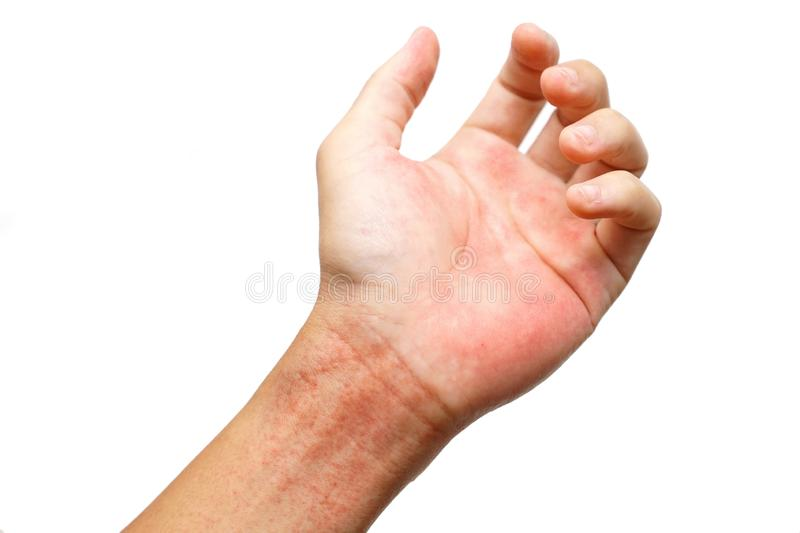 Red rash on wrist. Isolated on white background / Rashes  on skin caused by virus stock photos