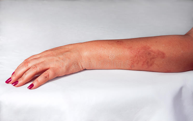 Redness from burn on woman hand. Redness from painful burn on woman hand stock photography