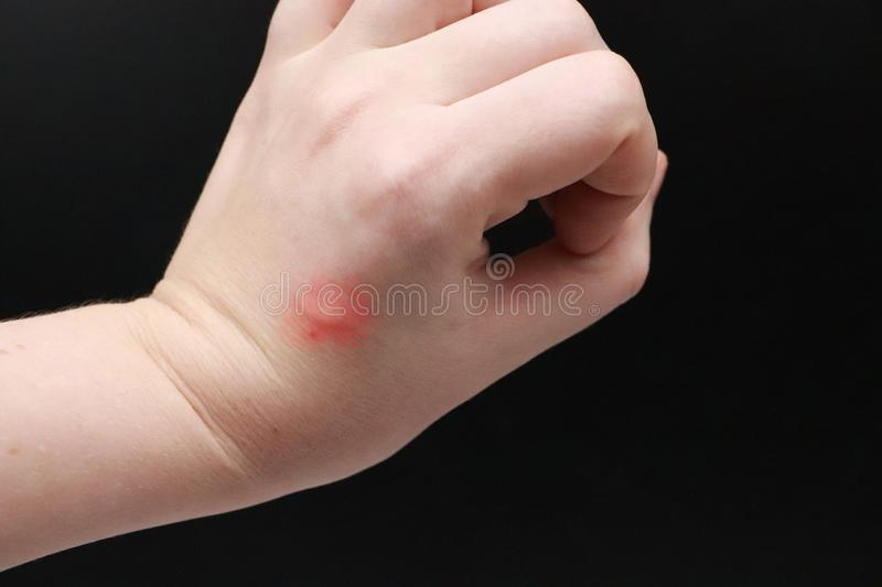 Redness and itching on the arm. The doctor examines the hand on which the bite of an insect, a mosquito. The doctor examines the hand on which the bite of an stock photo
