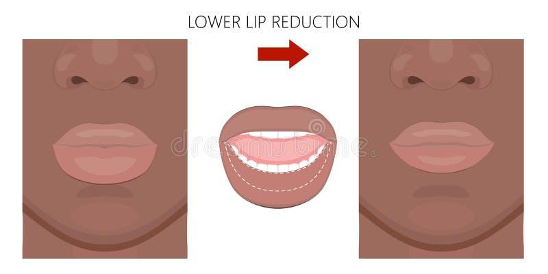 Redução americana front_African do bordo da cara mais baixa ilustração do vetor