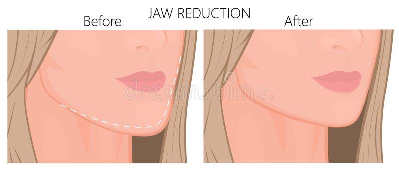 Redução plástica do surgery_Jaw perto acima ilustração do vetor