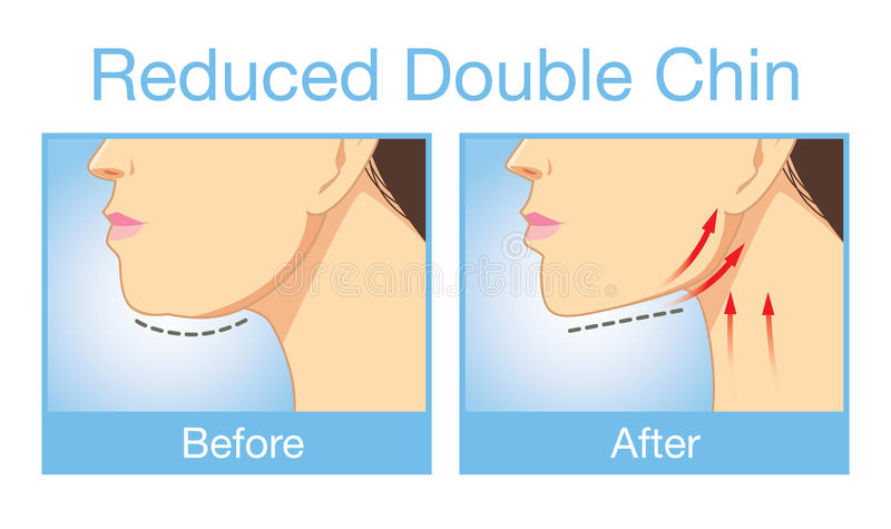 Reduce a double chin. Illustration before and after reduce a double chin. Look firming up in after image royalty free illustration