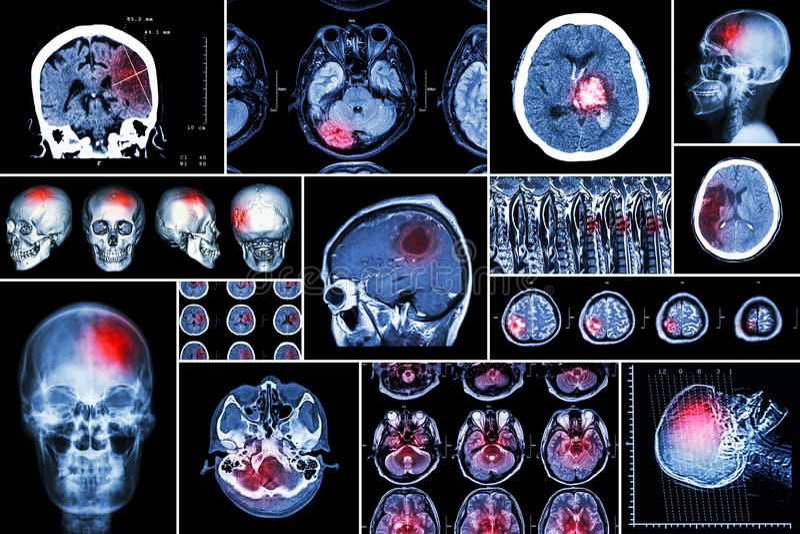 Reeks, Inzameling van hersenenziekte (Herseninfarct, Hemorrhagic slag, Hersenentumor, Schijfherniation met ruggemerg comp stock afbeeldingen