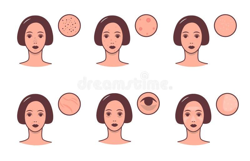 Reeks vrouwelijke gezichten met diverse huidvoorwaarden en probleem Skincare en de dermatologieconcept Kleurrijke vector royalty-vrije illustratie