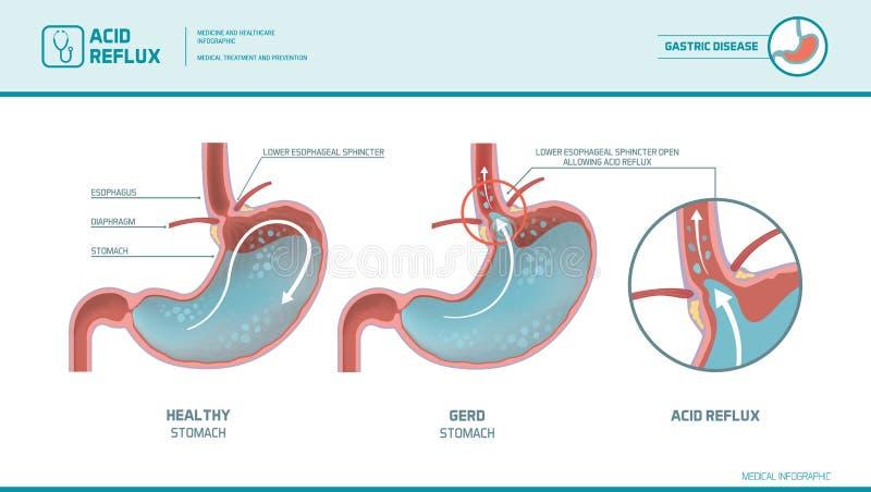 Reflujo ácido y ardor de estómago infographic stock de ilustración