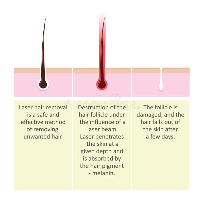 Regeling van de verwijdering van het laserhaar Beschrijving van de de kosmetiekprocedure stock illustratie