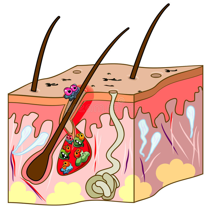Regeling van huid met acne vector illustratie