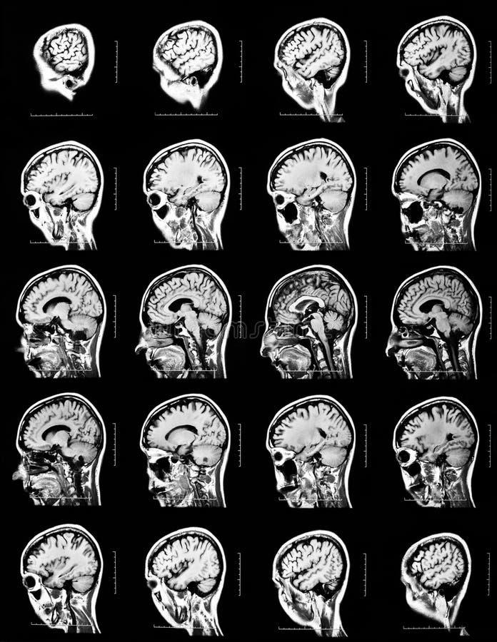 Reihenfolge von Vertikalschnitten eines menschlichen Gehirns stockfotografie