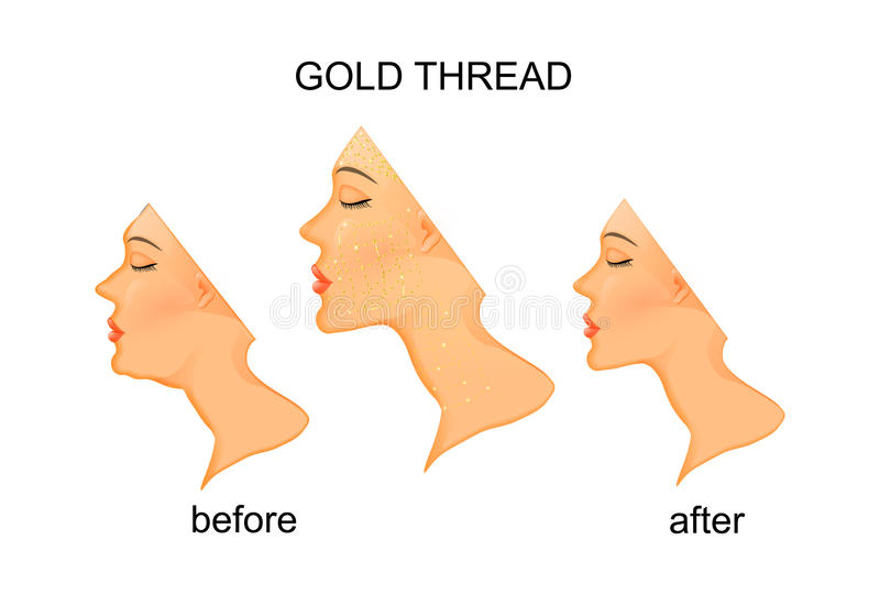 Rejuvenation of the face and neck with gold thread. Illustration of facial rejuvenation and neck with gold thread.before and after vector illustration