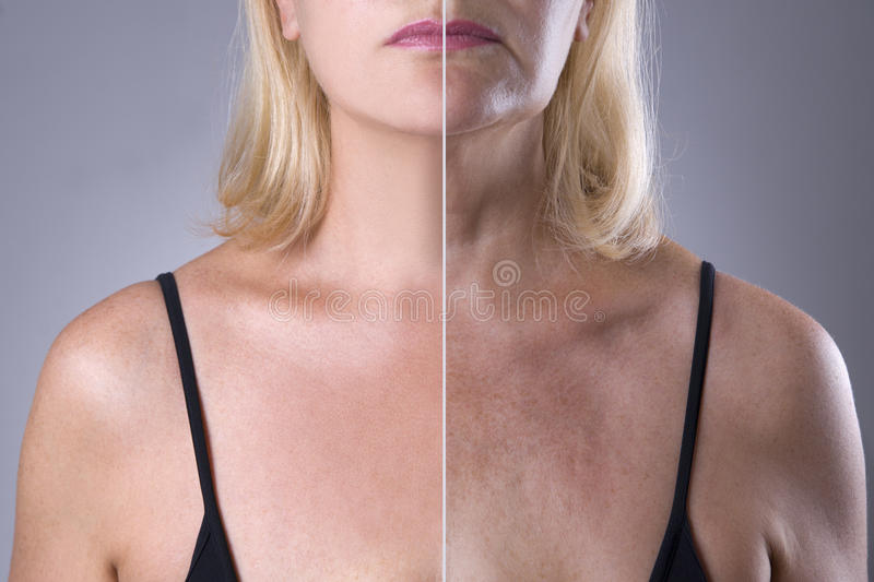Rejuvenation woman`s skin, before after anti aging concept, wrinkle treatment, facelift and plastic surgery stock photography