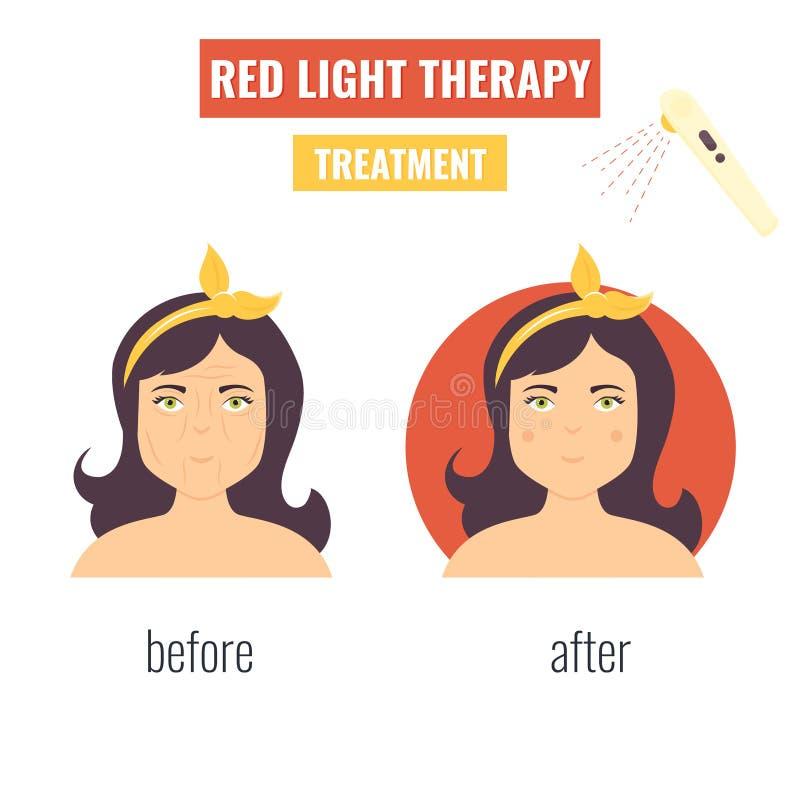 Rejuvenescimento da pele do laser Terapia clara vermelha ilustração do vetor