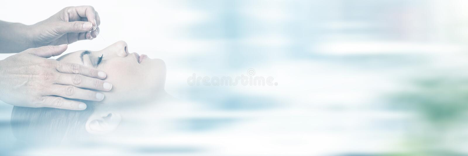 Relaxed woman receiving an acupuncture treatment stock image
