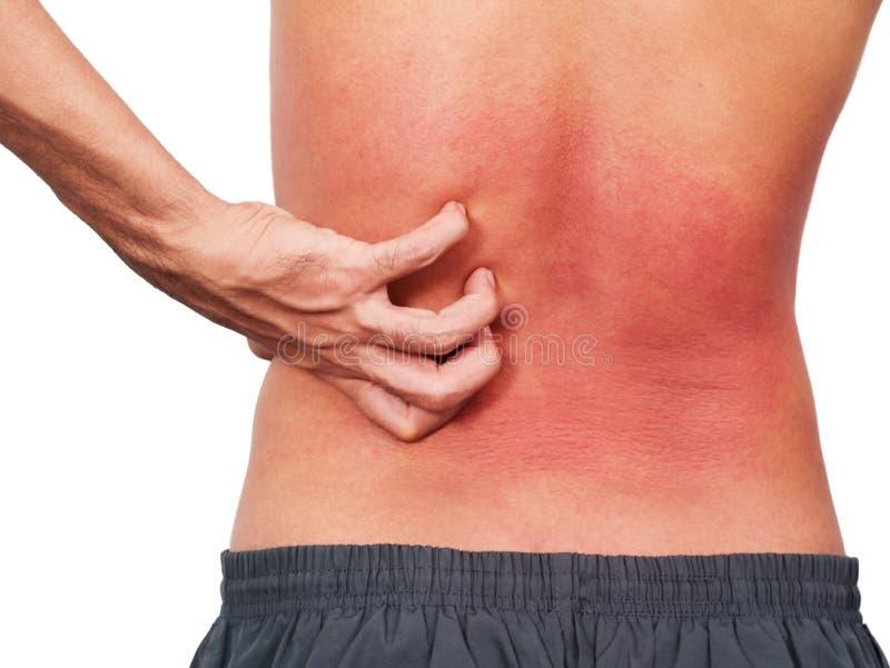 Remettez l'homme rayant son dos d'allergie de peau dessus photographie stock libre de droits
