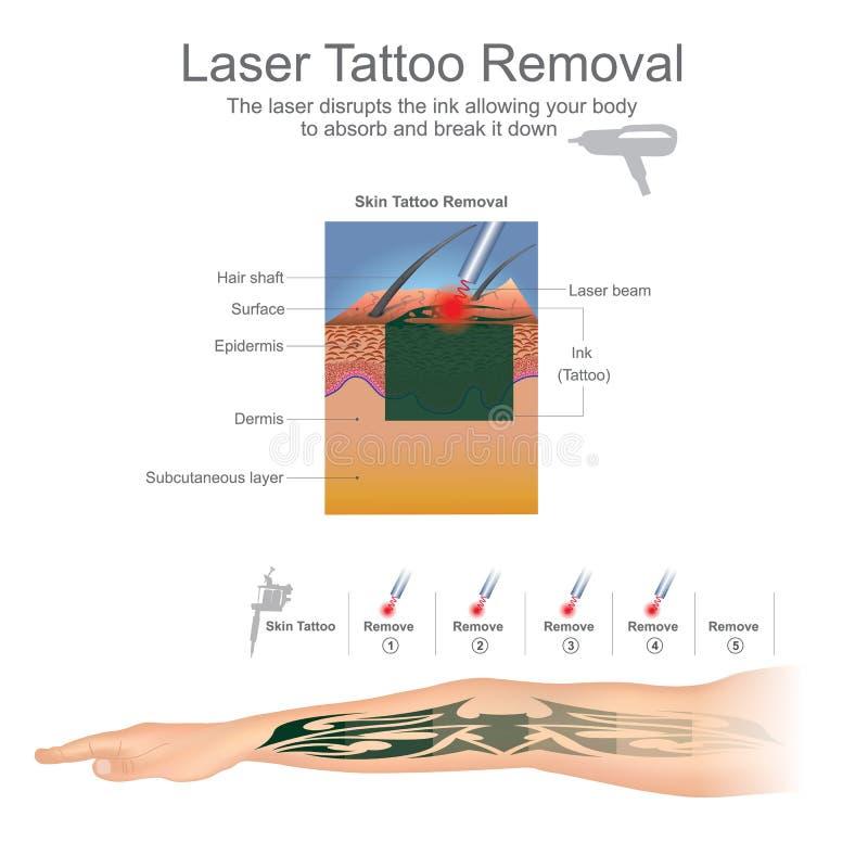 Remoção da tatuagem ilustração do vetor