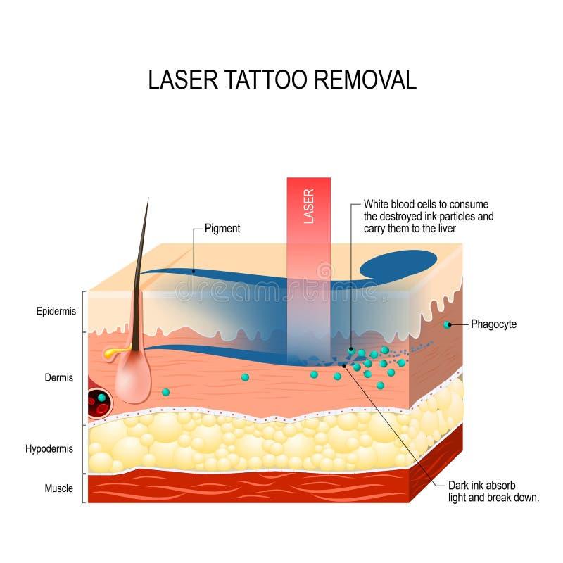Remoção da tatuagem do laser ilustração royalty free