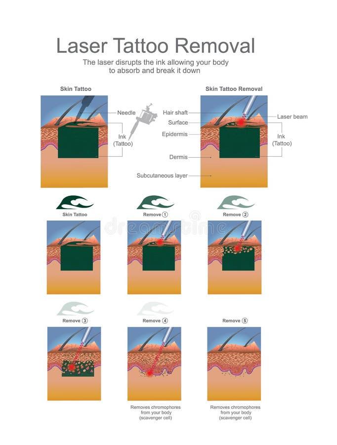 Remoção da tatuagem do laser ilustração do vetor