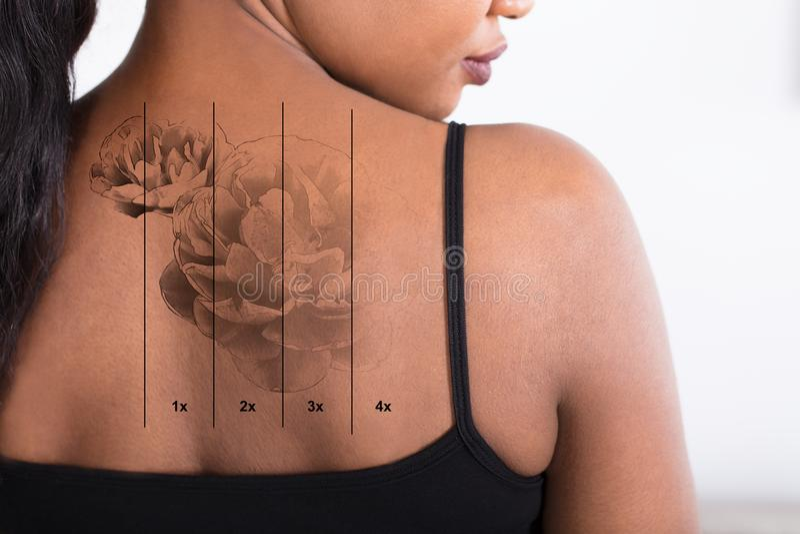 Remoção da tatuagem do laser no ` s da mulher para trás foto de stock royalty free