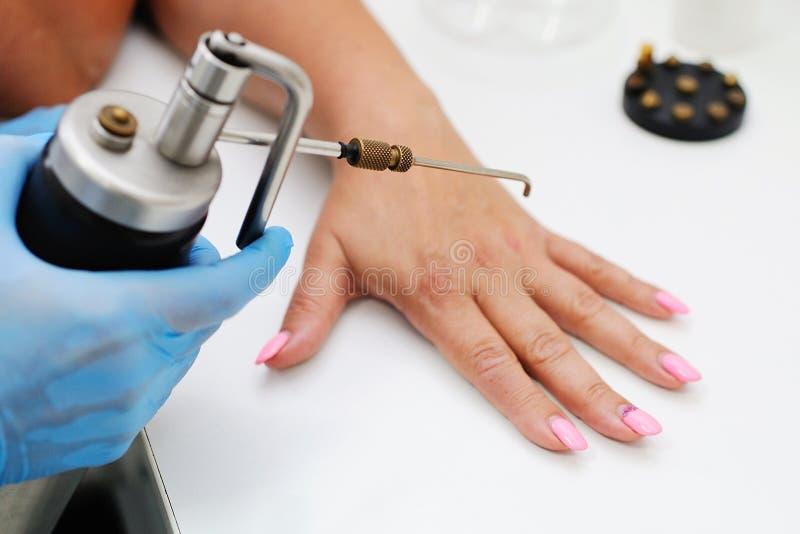 Remoção das verrugas na clínica da dermatologia imagens de stock royalty free