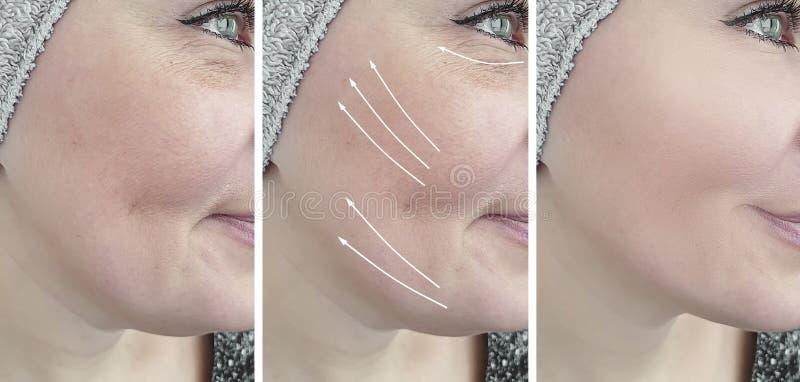 Remoção do olho do efeito da diferença da seta da cosmetologia dos enrugamentos da cara da mulher antes e depois do tratamento imagens de stock royalty free