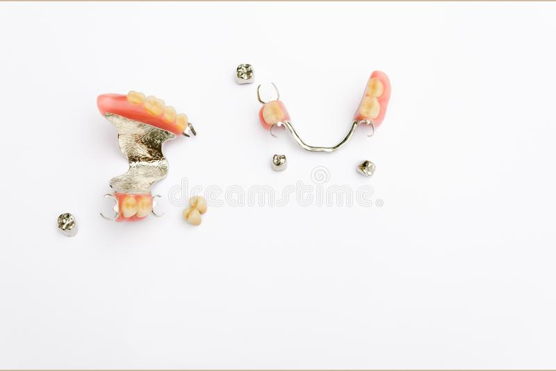Removable clasp prosthesis on the upper and lower jaw with metal and ceramic-metal crowns stock photos