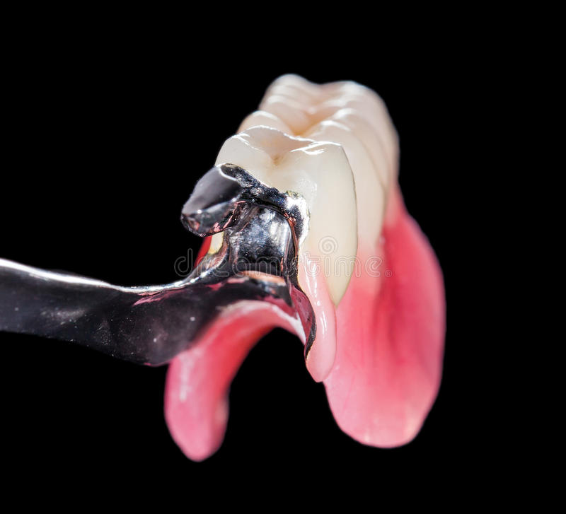 Free Removable Dental Prosthesis Stock Image - 44645981