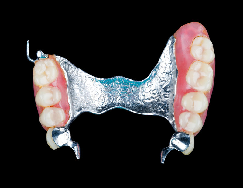 Removable dental prosthesis. Closeup of dental skeletal prosthesis with porcelain crowns stock photography