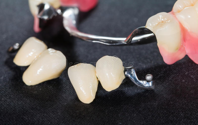 Removable dental prosthesis. Closeup of dental skeletal prosthesis with porcelain crowns royalty free stock photography
