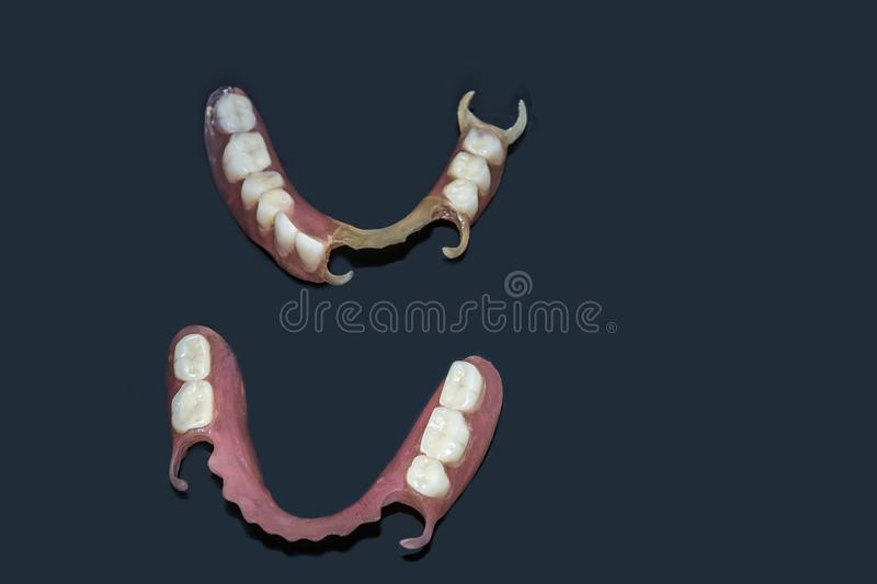 Removable dentures flexible, devoid of nylon, hypoallergenic exempt from monomer. Removable dentures flexible, devoid of nylon, hypoallergenic exempt from royalty free stock photos