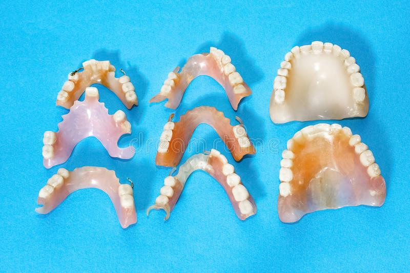 Removable dentures flexible, devoid of nylon, hypoallergenic exempt from monomer. Removable dentures flexible, devoid of nylon, hypoallergenic exempt from stock images