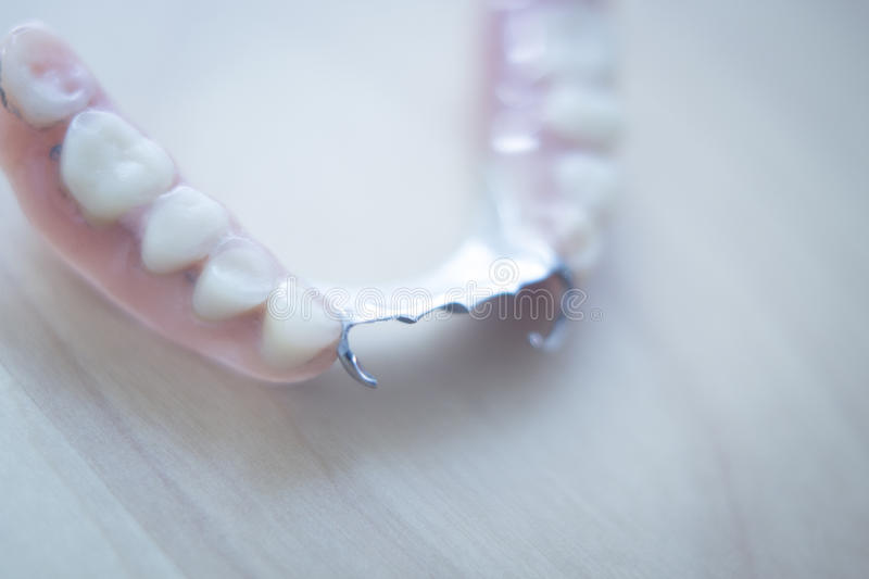 Removable partial dentures stock photography