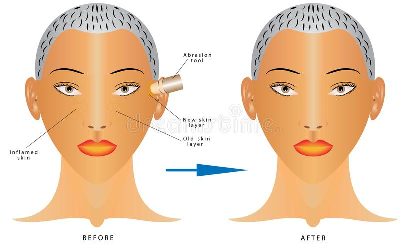Removal of dead cages of a skin. Face Skin Care. Facial Rejuvenation. Removal of dead cages of a skin. Mechanical peeling skin. Hardware cosmetology stock illustration