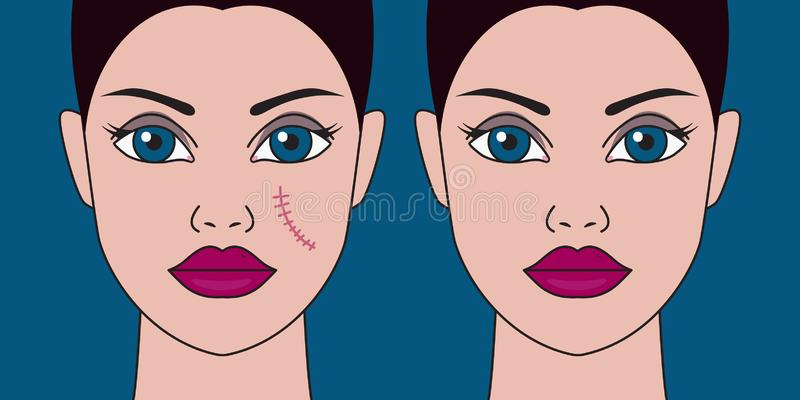 Removal of scars from face. Woman with scar on cheek, laser skin resurfacing, surgical removal of scar. Vector illustration stock illustration