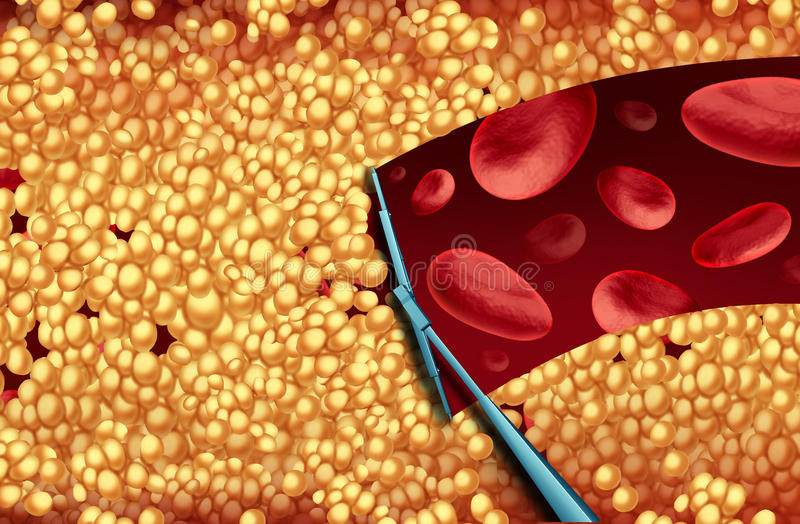 Removendo o colesterol ilustração do vetor